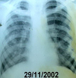 Chest x-ray done after 2 years