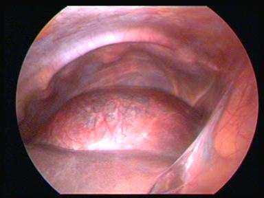 Endoscopic view of the giant non-parasitic