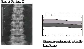 image of xray and graph