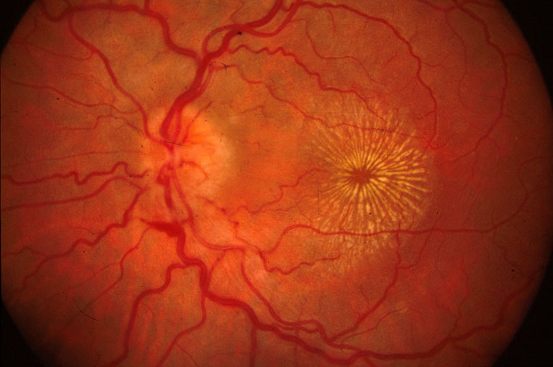compressive optic neuropathy steroid