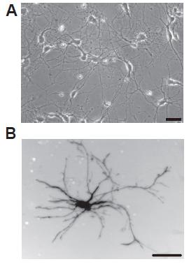 Primary cultures of dissociated hippocampal neurons