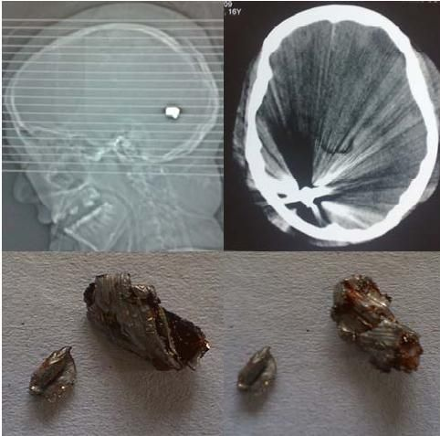 deformed and mushroomed splinters removed from the occipital lobe